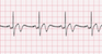 Pacemaker Single Chamber Atrial EKG Tracing