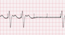 Pacemaker Failure to Capture EKG Tracing