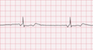 Junctional Escape Rhythm EKG Tracing