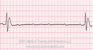 Third Degree Heart Block ECG Tracing