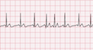 Multifocal Atrial Tachycardia EKG Tracing