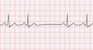 Sinoatrial Block ECG Tracing