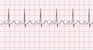 Wolff-Parkinson-White Syndrome EKG Tracing