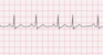 Premature Junctional Complex EKG Tracing
