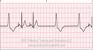 Pacemaker Failure to Pace ECG Tracing