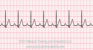 First Degree Heart Block EKG Tracing