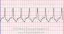 Accelerated Idioventricular Rhythm EKG Tracing