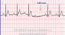 Second Degree Heart Block Type I ECG Tracing