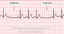 Second Degree Heart Block Type II EKG Tracing