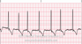 Atrial Fibrillation ECG Tracing
