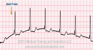 Accelerated Junctional Rhythm ECG Tracing