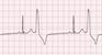 EKG Strip