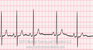 Sinus Arrhythmia ECG Tracing