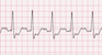 Bundle Branch Block ECG Tracing