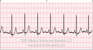 Normal Sinus Rhythm ECG Tracing