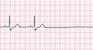 Sinus Arrest EKG Tracing